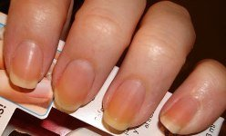 How To Whiten Yellow Nails in Easy Steps