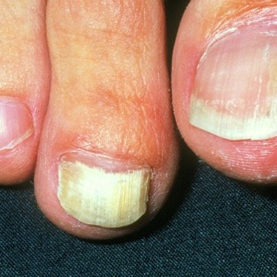 Onychia fungal infection