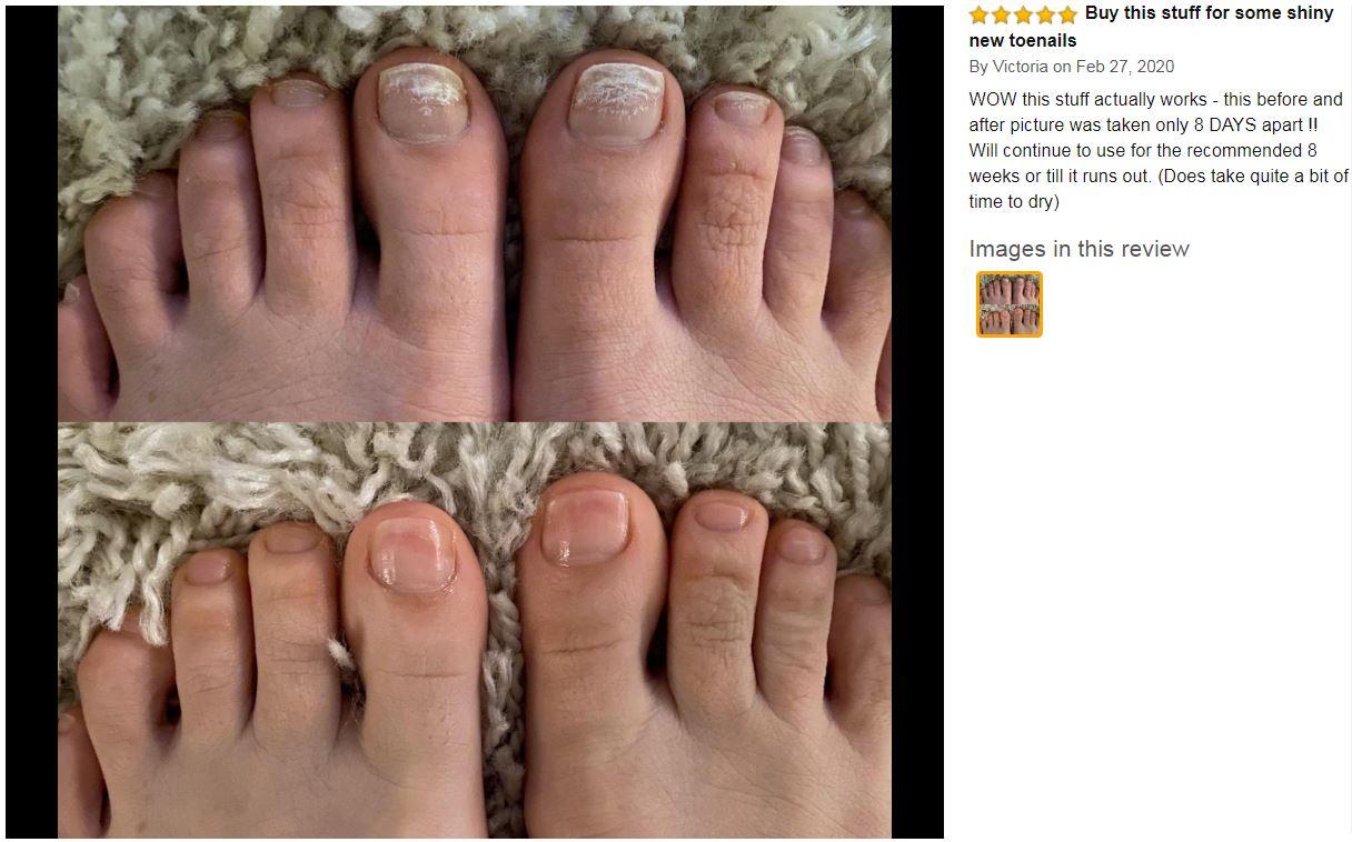 kerasal nail before and after