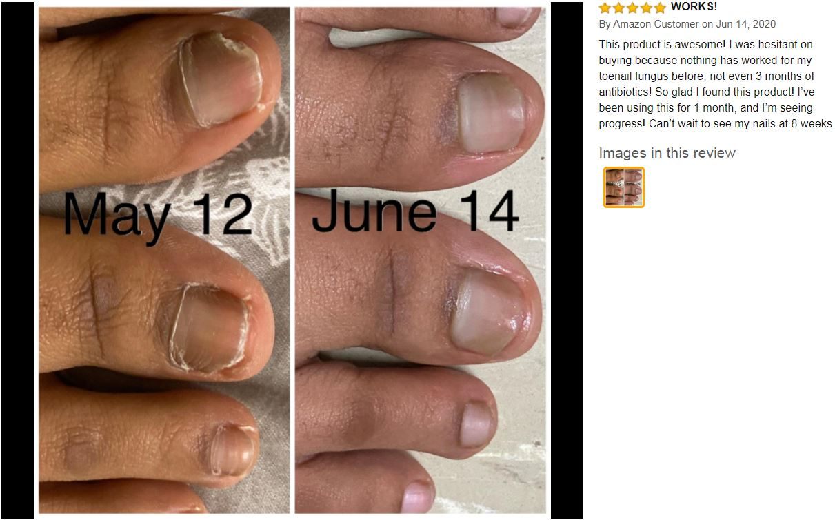 does kerasal kill toe fungus