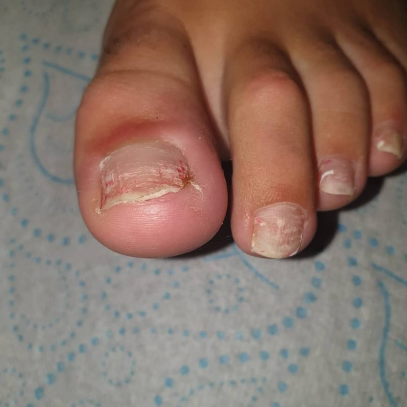 ToeNail Fungus Infection