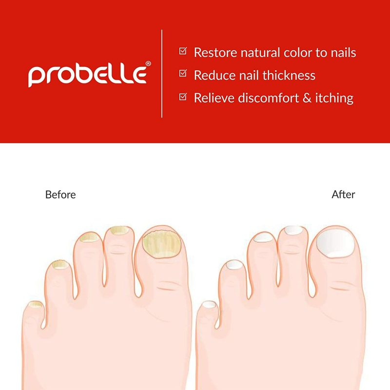 Probelle Natural Fungal Gel