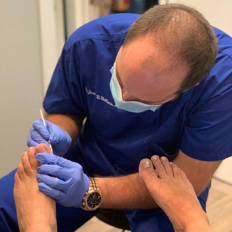 nailfungus treatment
