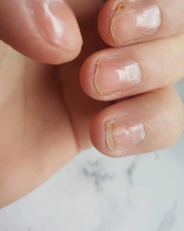 How to Fix Weak Nails