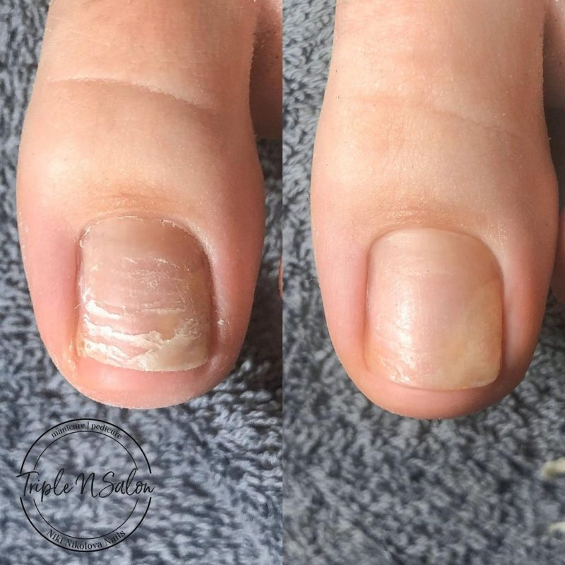 How to Take Care of Weak Nails